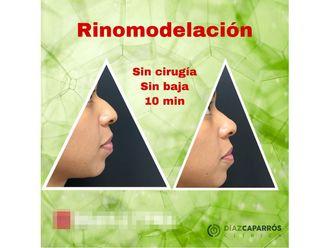 Rinomodelación - 647385