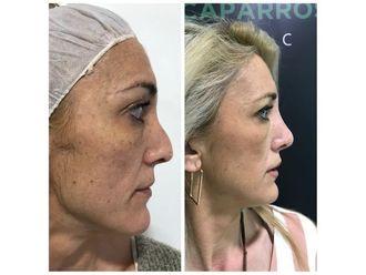 Cirugía estética-701536