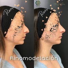 Rinomodelación - Clínica Díaz Caparrós