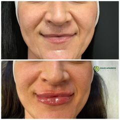 Aumento de labios - Clínica Díaz Caparrós
