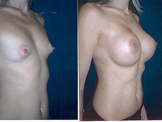 Aumento de pecho / Breast Augmentation