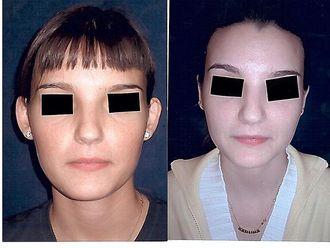 Cirugía estética-542666
