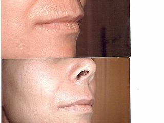 Dermoabrasión labio superior (Código de barras)