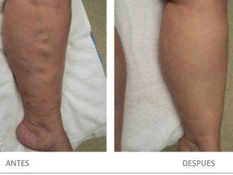 Tratamiento varices-543590