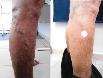 Tratamiento varices-543591