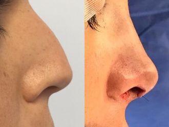 Cirugía estética-627084