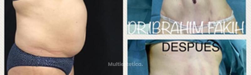 Abdominoplastia con liposuccion