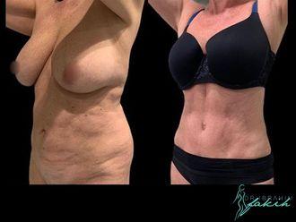 Abdominoplastia-664152