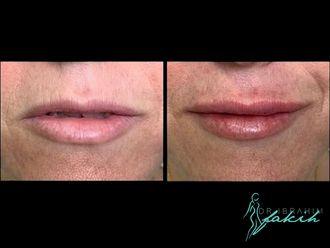 Aumento labios-664153