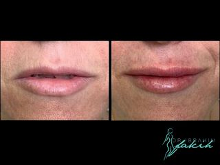 Aumento de labios - Dr. Ibrahim Fakih