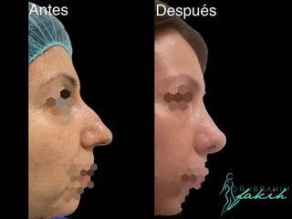 Rinoplastia - Dr. Ibrahim Fakih