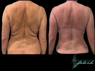 Liposucción - Dr. Ibrahim Fakih