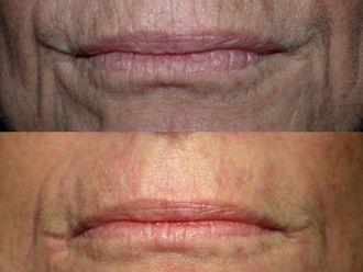 Radiofrecuencia facial - 540962