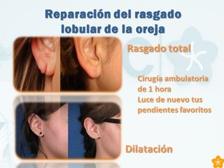 Cirugía ambulatoria lóbulo oreja