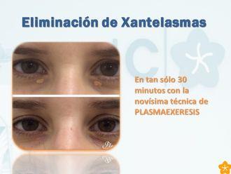 Xantelasmas-519137