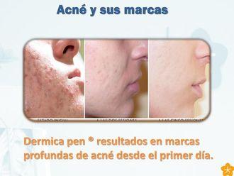 Tratamiento antiacné-546215