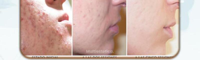 antes y después acné