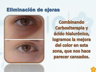 Eliminación ojeras-546216