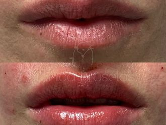Aumento labios-741893