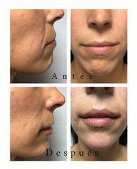 Aumento de labios - Centro Clínico Bruselas