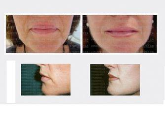 Antes y después Rellenos faciales