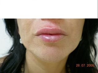 Después Relleno de labios