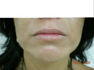 Antes Relleno de labios