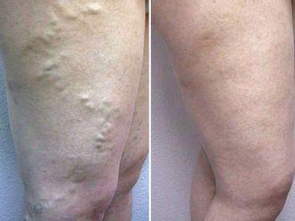 Tratamiento varices-367019