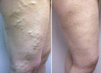 Antes y después tratamiento para varices