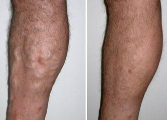 Antes y después Tratamientos vasculares