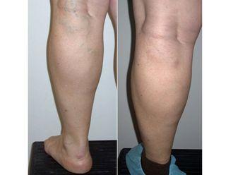 Tratamiento varices-500284