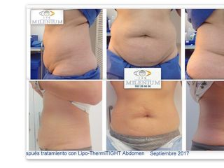 Lipo-Flacidez ThermiTIGHT