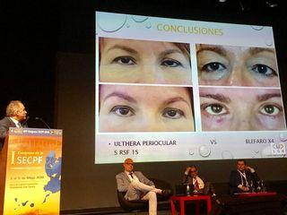 Dr. Jorge Alvarez Marín congreso cirugía plástica Rejuvenecimiento periocular