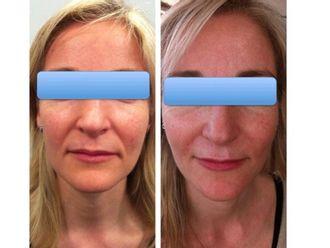 Rejuvenecimiento facial-428718