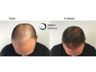 Antes y después Mesoterpia