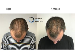 Antes y después  PRP