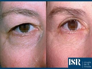 Antes y después Blefaroplastia