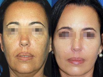 Rejuvenecimiento facial-713420