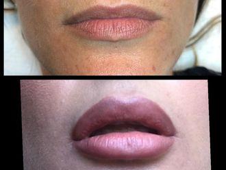 Aumento labios - 638179