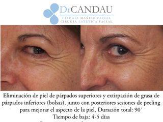 Antes y después Blefaroplastia y peeling facial