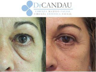 Antes y después Combinación de blefaroplastia e hilos tensores para rejuvenecimiento facial