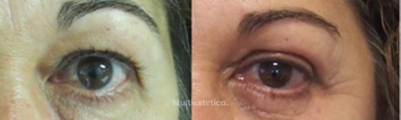 Combinación de blefaroplastia e hilos tensores para rejuvenecimiento facial