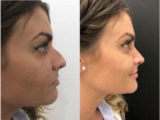 Antes y después Rinoplastia Ultrasonica