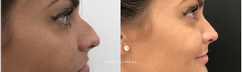 Dr. Alberto Candau - Cirugía Estética Facial