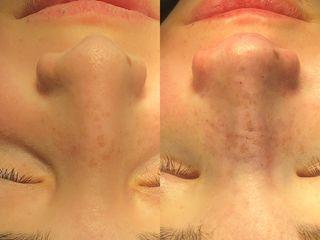 Antes y después Rinoplastia Ultrasonica - Dr Candau