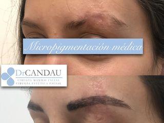Antes y después Micropigmentación Capilar - Dr Candau