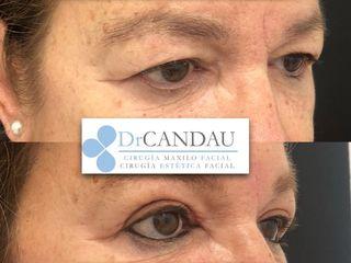Blefaroplastia Superior - Dr Candau
