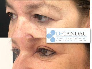 Antes y después Blefaroplastia Superior - Dr Candau