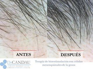 Antes y después Terapia de Bioestimulación