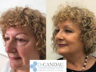 Antes y después Blefaroplastia Inferior Transconjuntival